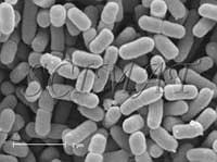 lab report shigella sonnei Shigella sonnei causes foodborne infections, but has re- cently also been   sonnei infection – the first report of this emerging infection  mission between  men who have sex with men: laboratory reports 2004 to 2016.